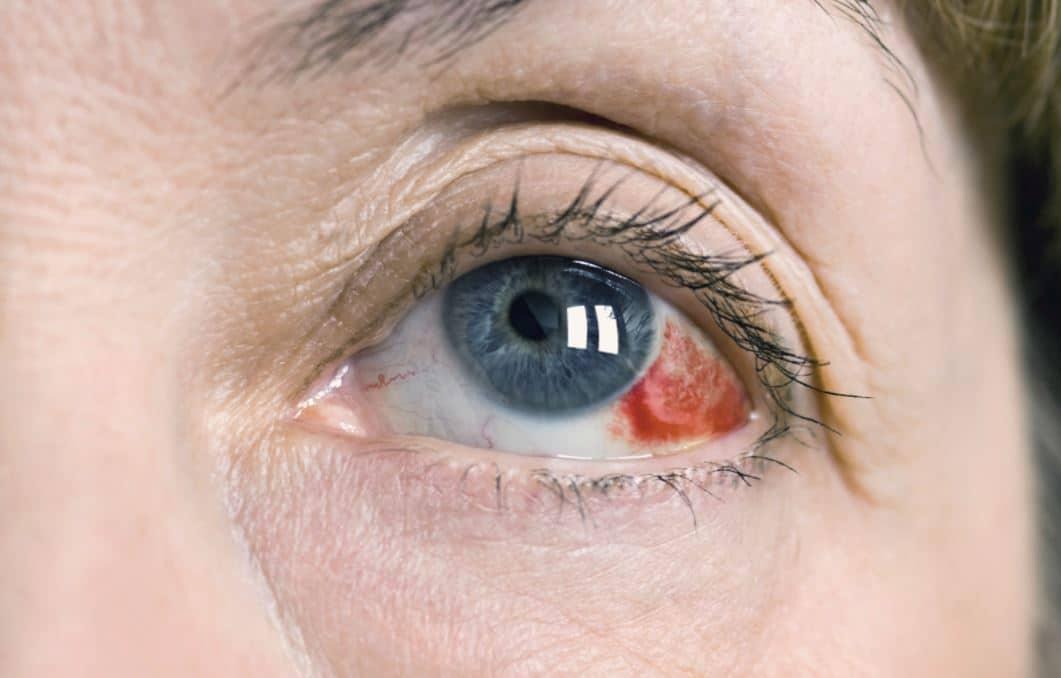 desprendimiento de retina 13