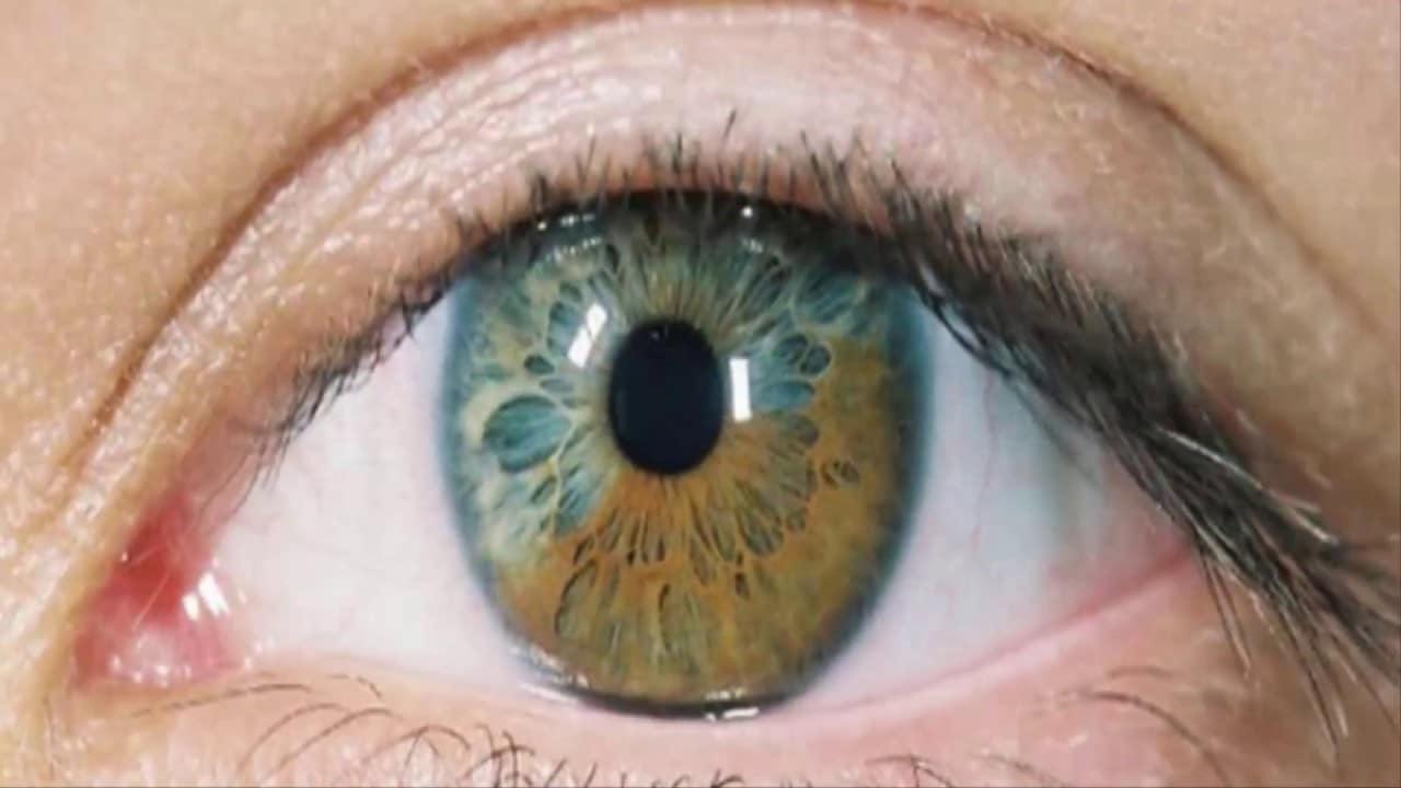 desprendimiento de retina 4