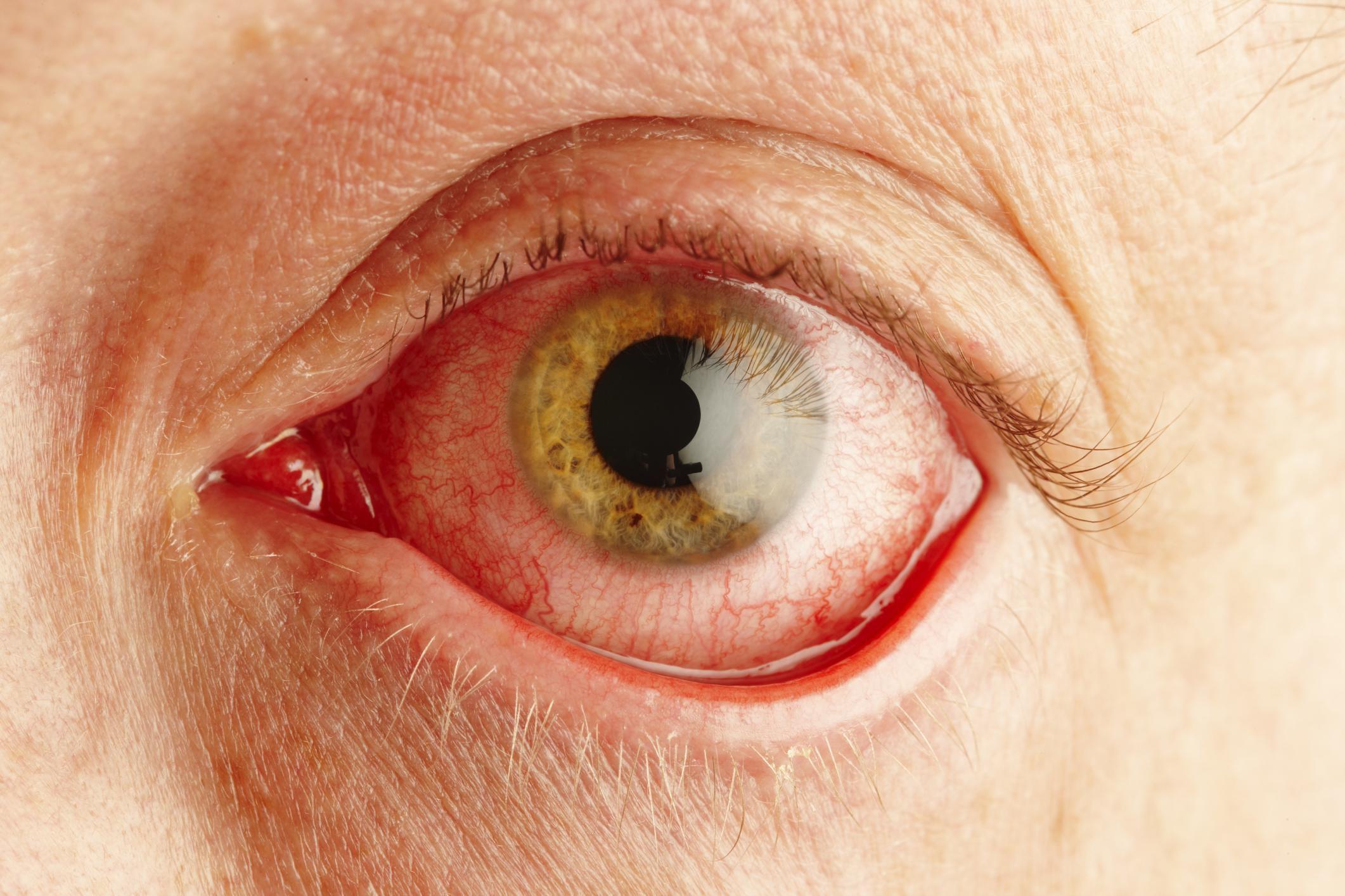 desprendimiento de retina 45