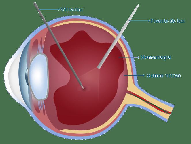desprendimiento de retina 5