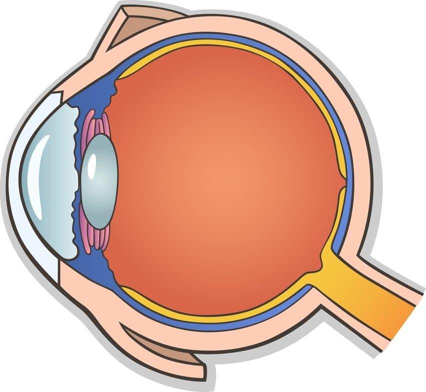 desprendimiento de retina 6