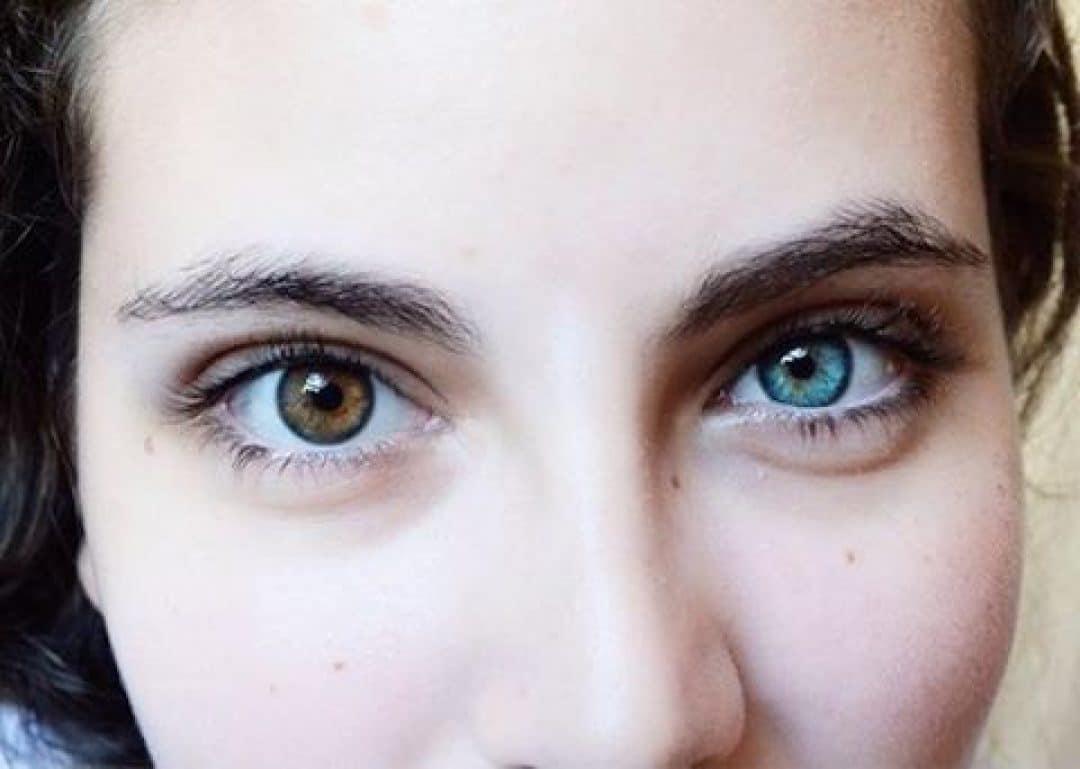enfermedades-oculares-raras-3