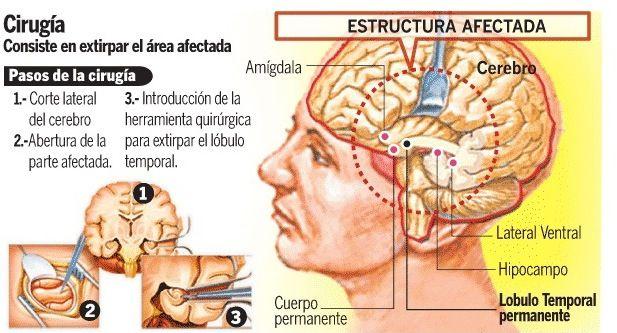 epilepsia 13