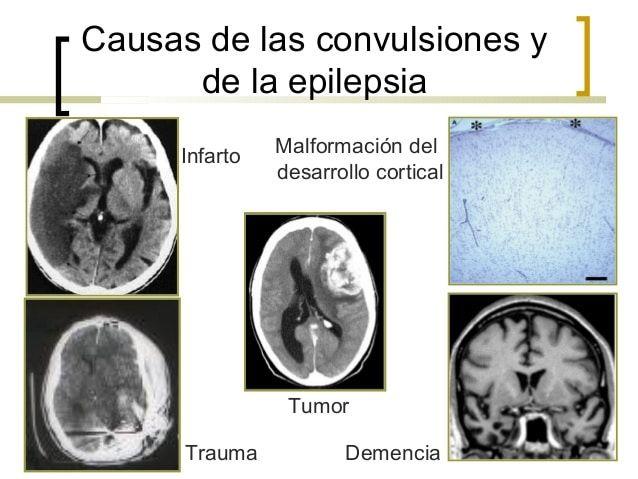 epilepsia-23