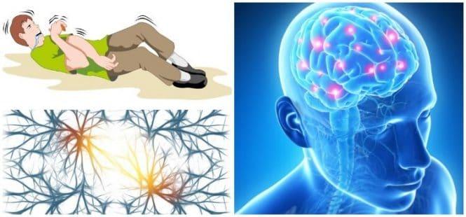 epilepsia 49