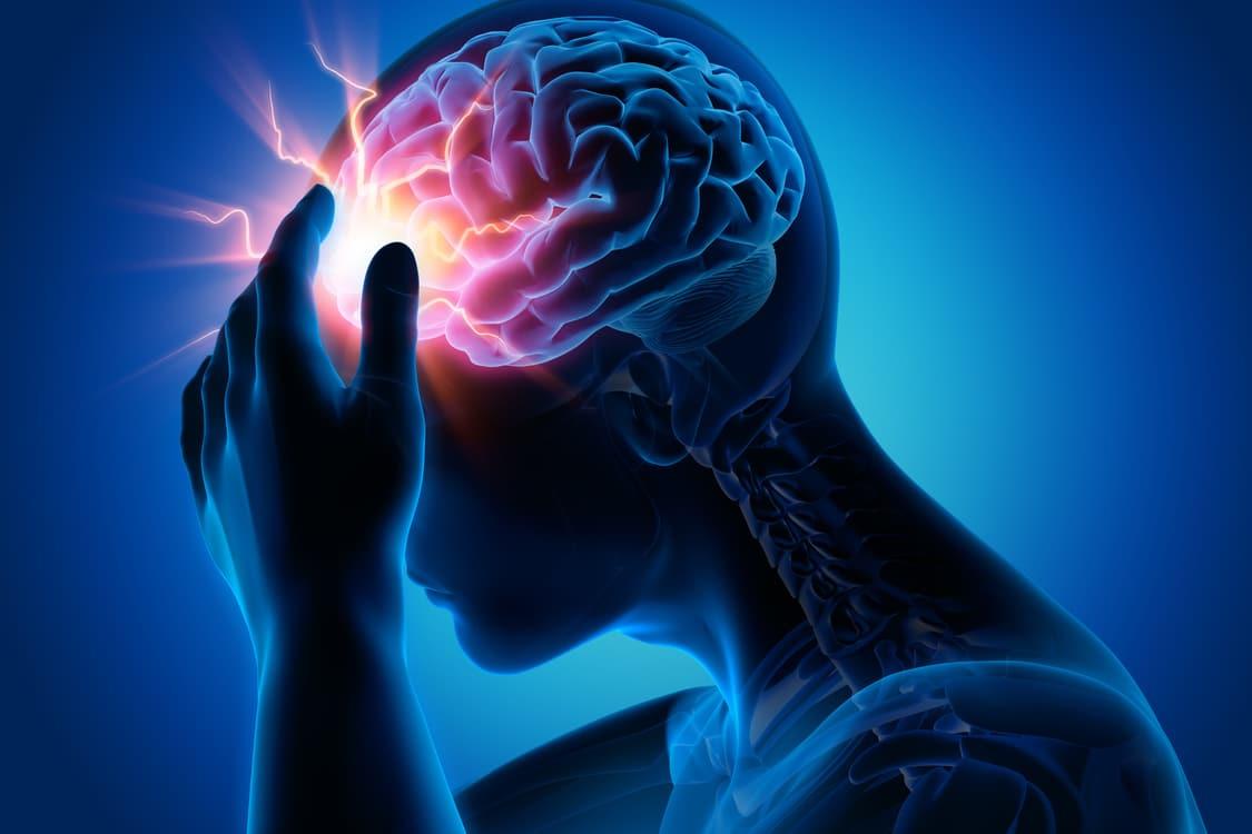 epilepsia 5