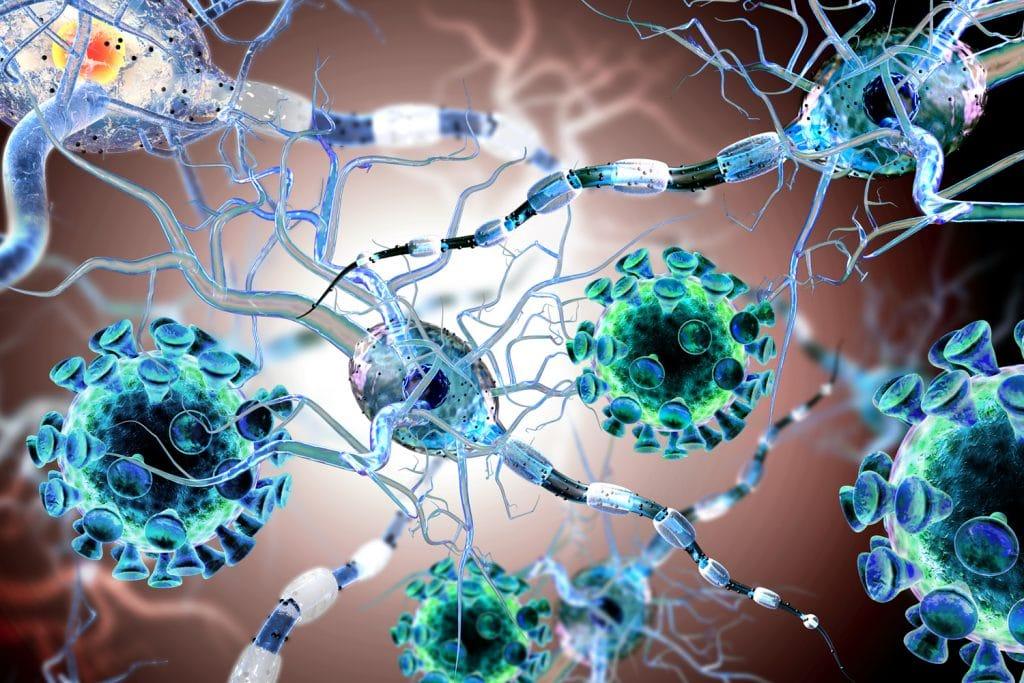 Esclerosis-lateral-amiotrófica 28