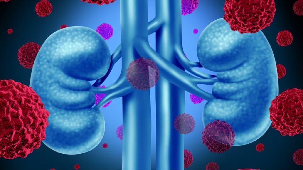 insuficiencia renal en la Retinopatía diabética