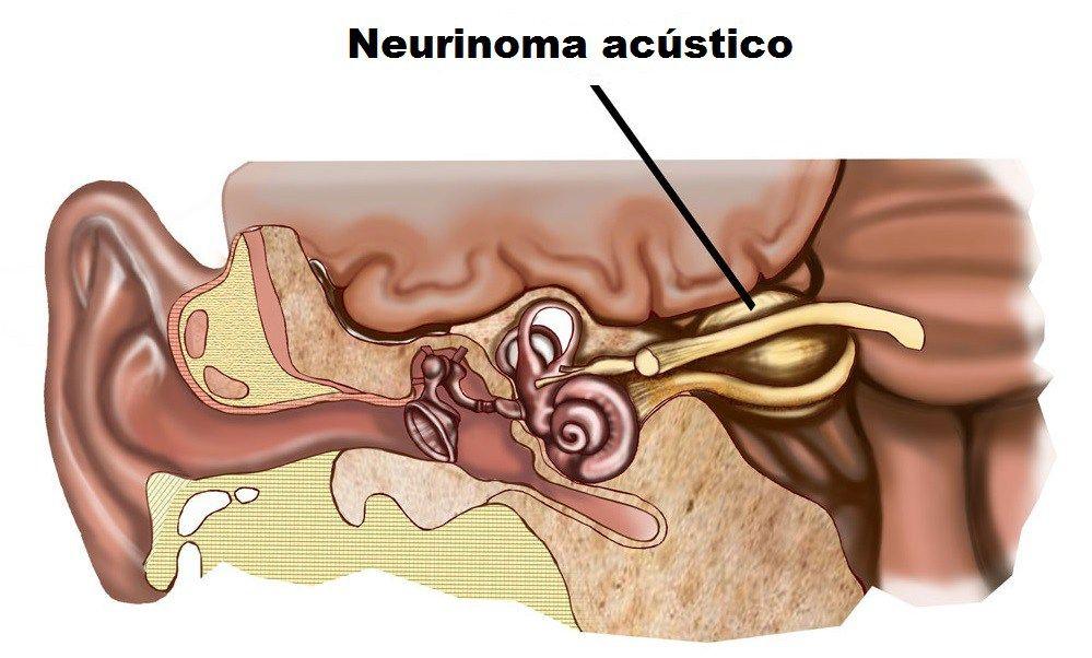 nervio auditivo enfermedad