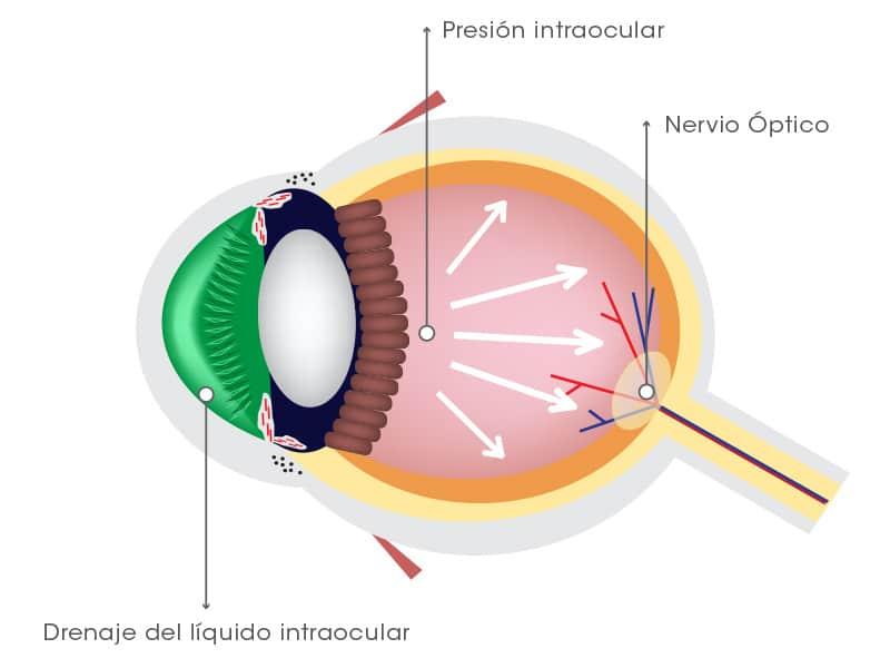 Tratamiento para la tension ocular alta