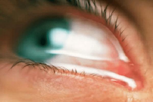 presion-intraocular-4