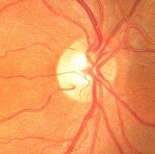 retina-3