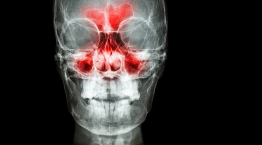 sinusitis maxilar