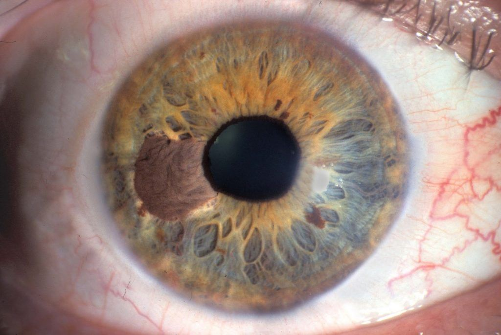 Melanoma-ocular-1