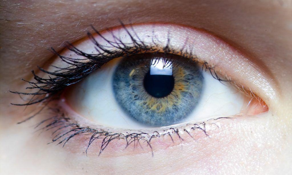 Melanoma-ocular-10