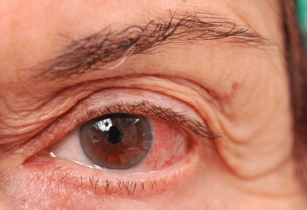 Melanoma-ocular-11