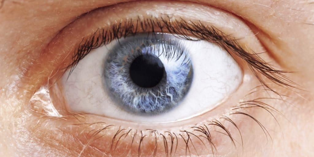 Melanoma-ocular-2