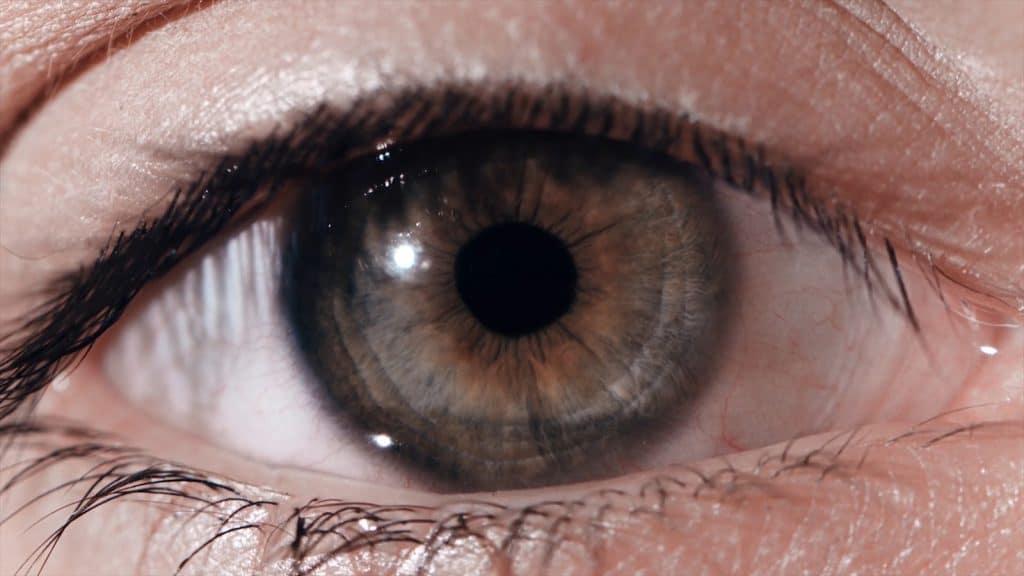 Melanoma-ocular-3