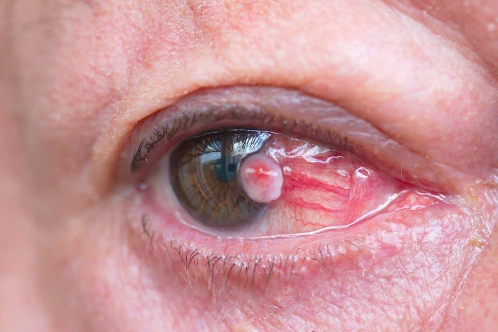 Melanoma-ocular-4