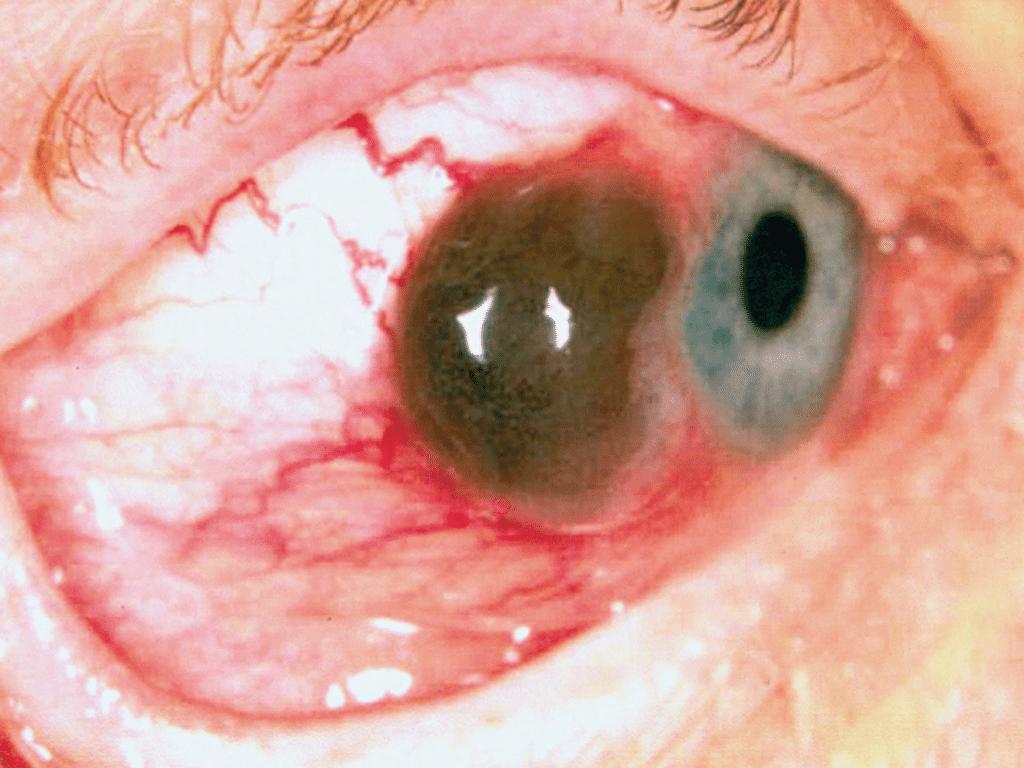Melanoma-ocular-5