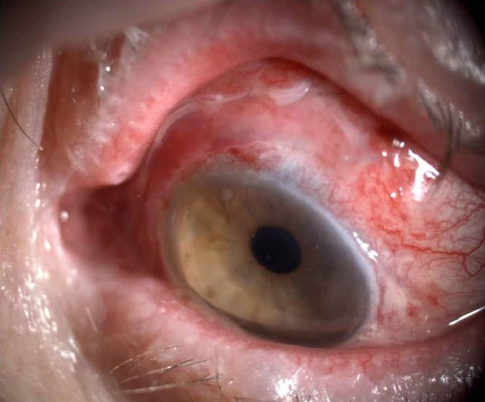 Melanoma-ocular-6