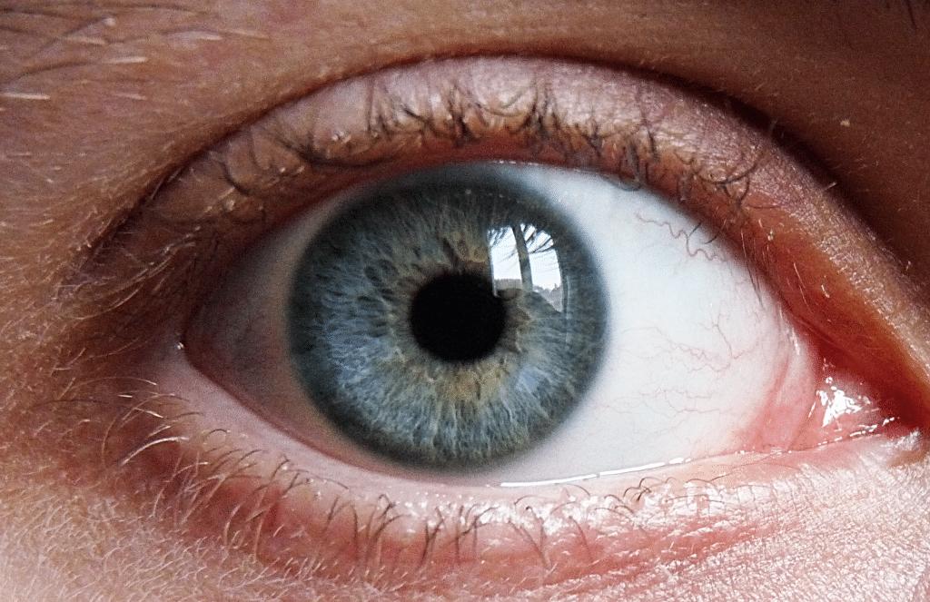 Melanoma-ocular-7