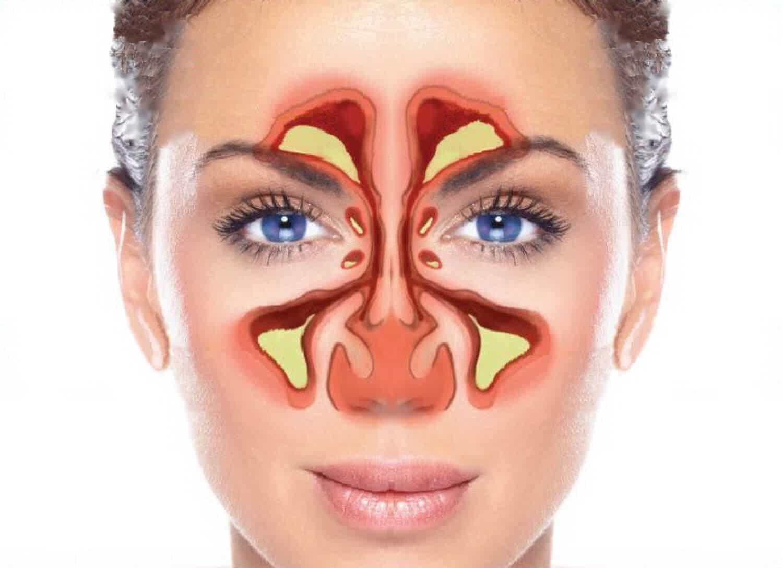 sinusitis frontal