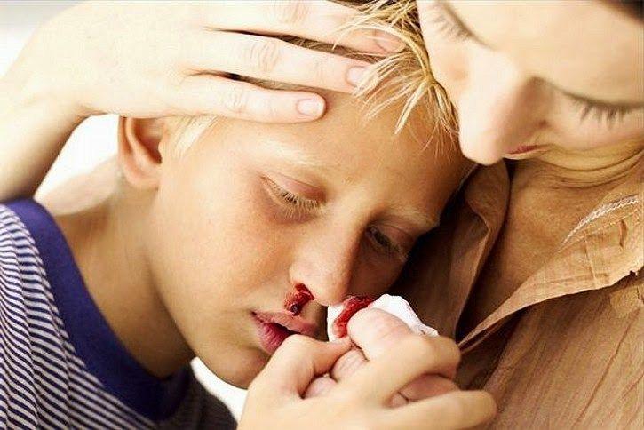 causas de la epistaxis 15