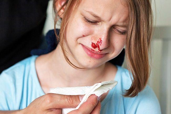 causas de la epistaxis 18