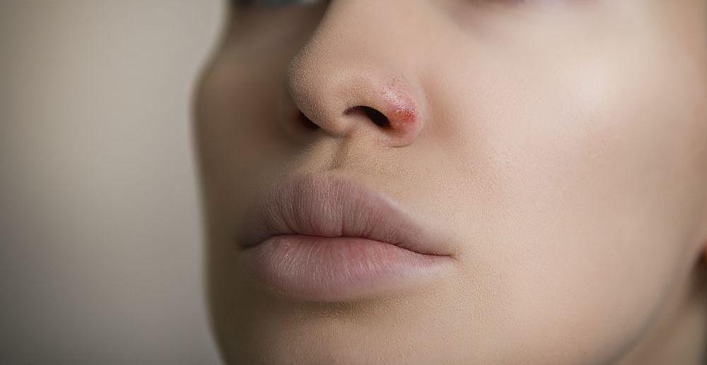herpes dentro de la nariz causas