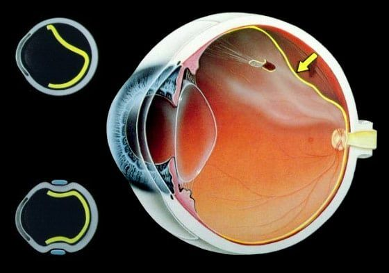 desprendimiento de vitreo y si tratamiento
