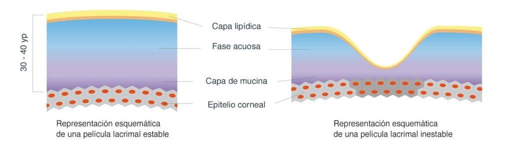 Película lagrimal en un Síndrome de ojo seco