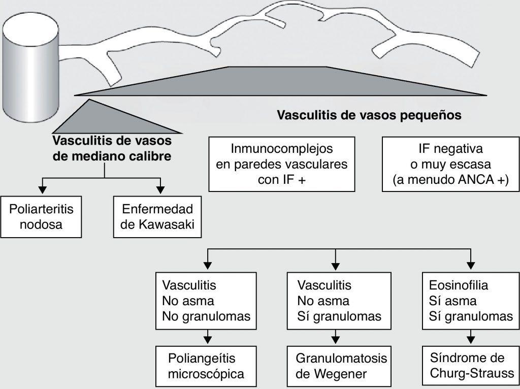 granulomatosis de wegener-29