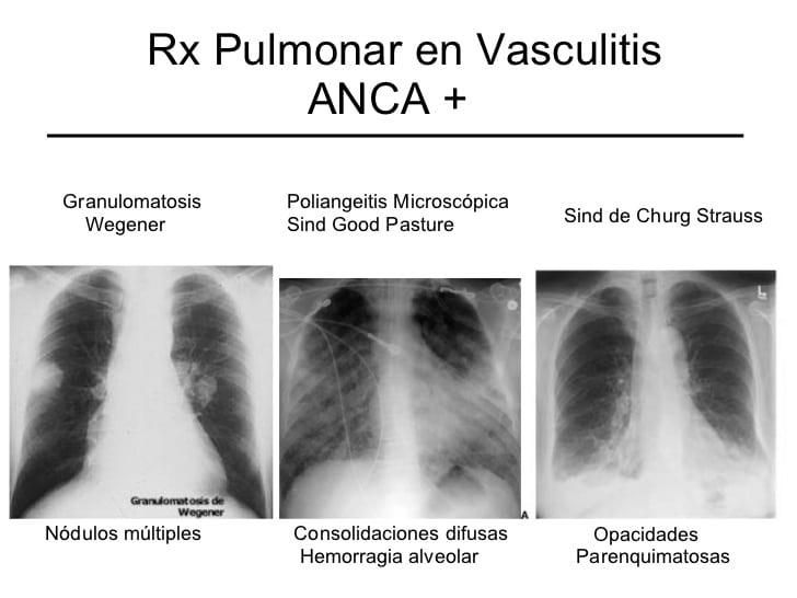 granulomatosis de wegener-32