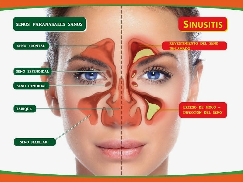 granulomatosis de wegener-9