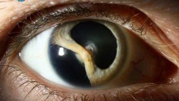hemorragia retiniana