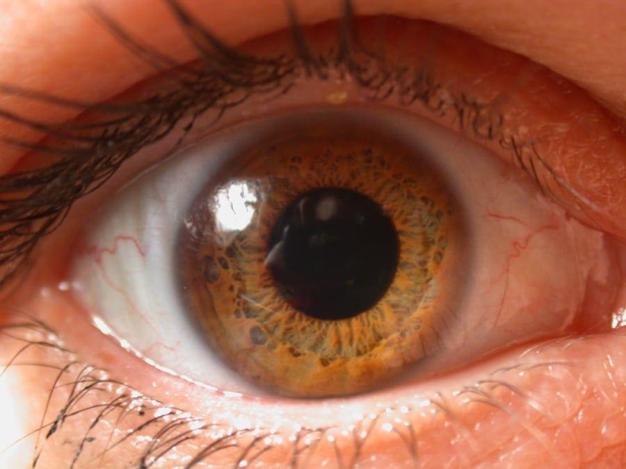 lesión corneal