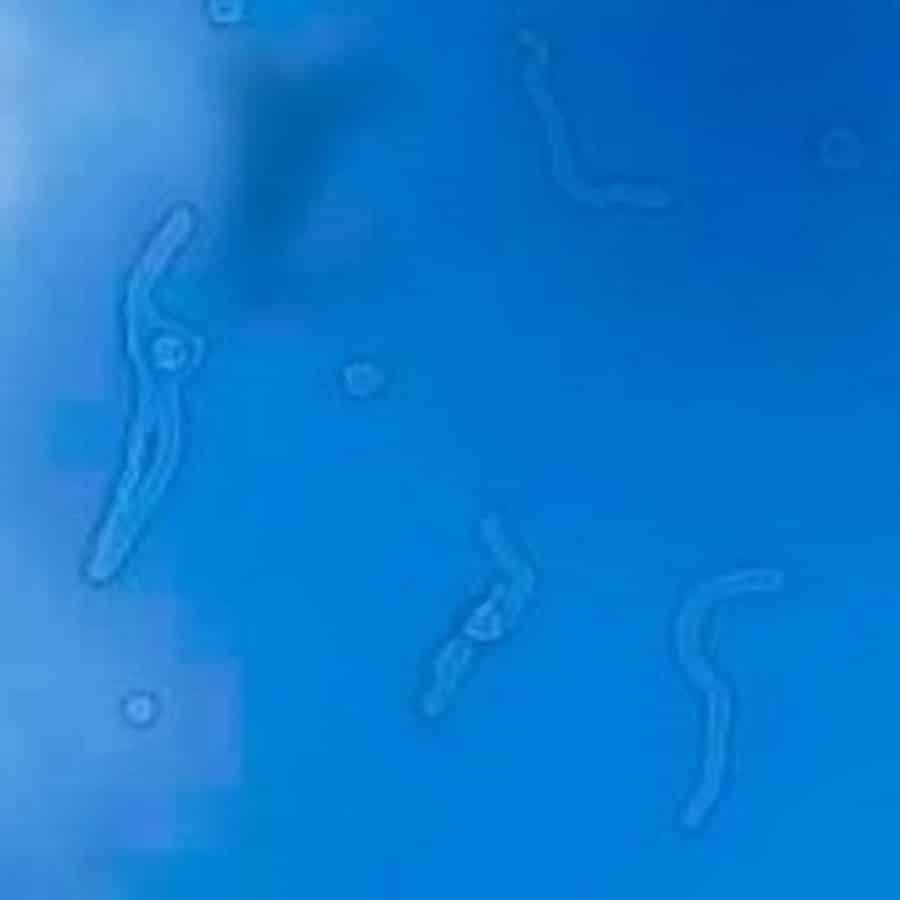 moscas volantes en Desprendimiento de vítreo