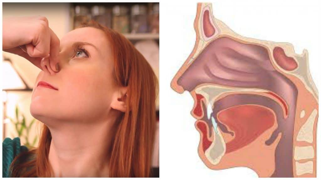 nariz tapada por rinitis