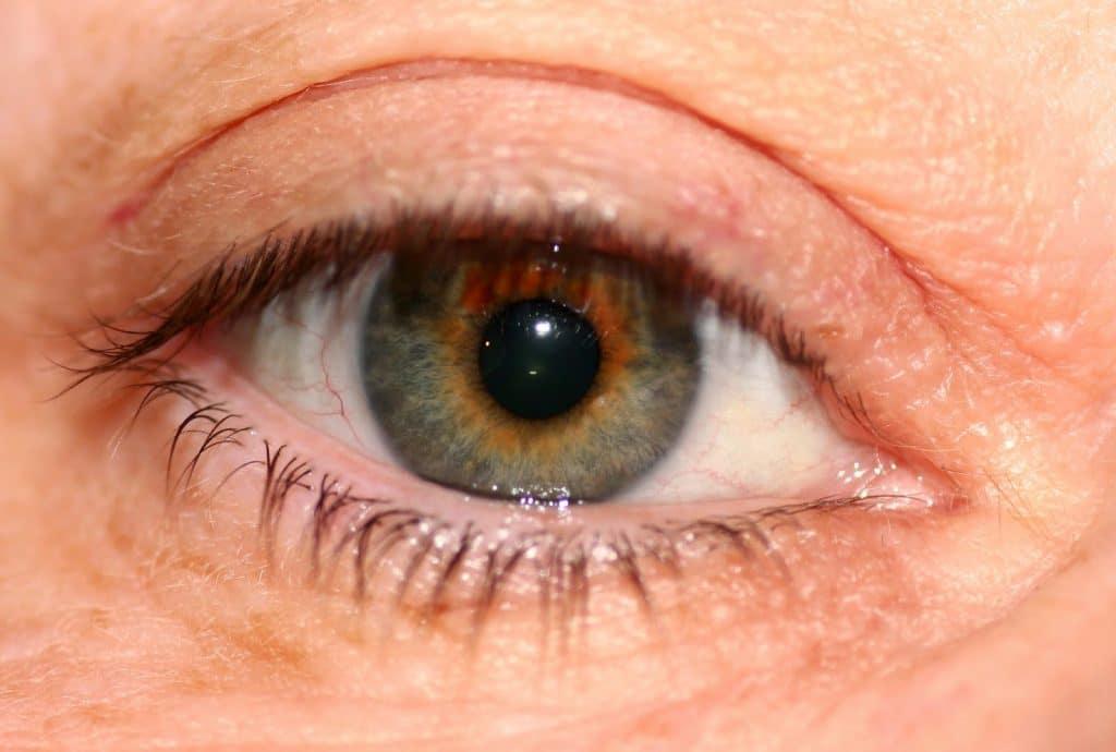 Síndrome de ojo seco en la menopausia