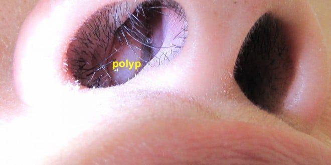 poliposis nasal-1