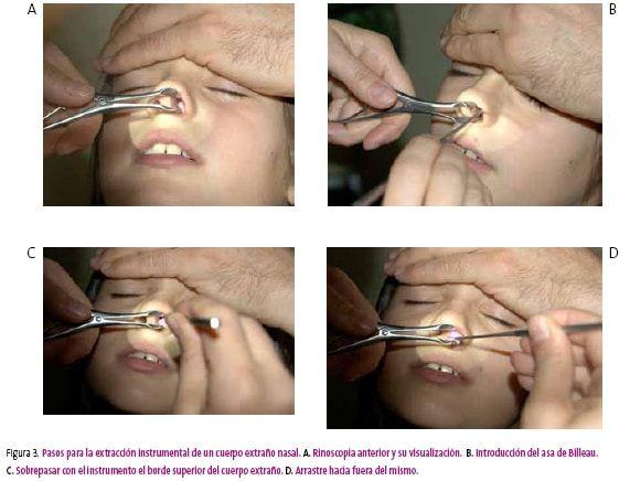 poliposis nasal-31