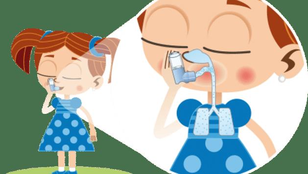 poliposis nasal-37