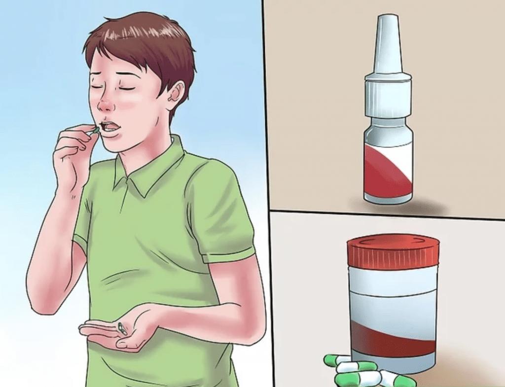 poliposis nasal-40