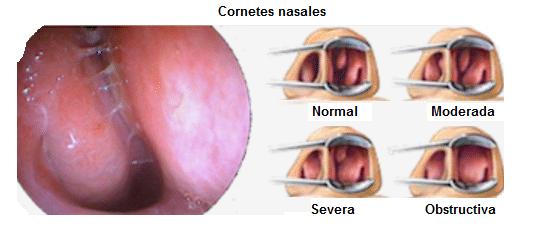 poliposis nasal-45