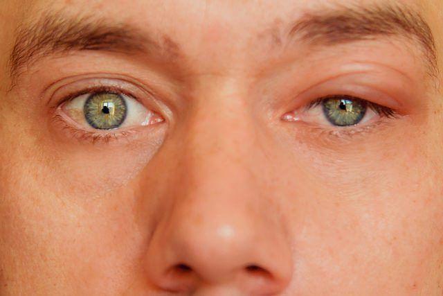 Pupila de Marcus-Gunn