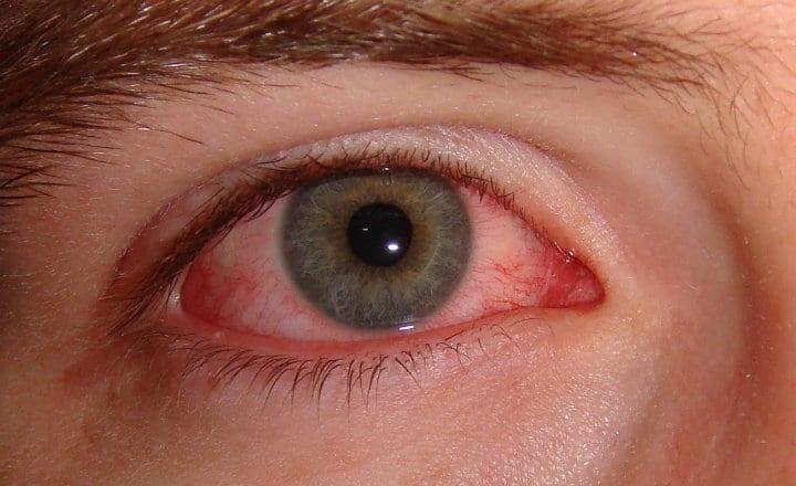 queratitis herpética