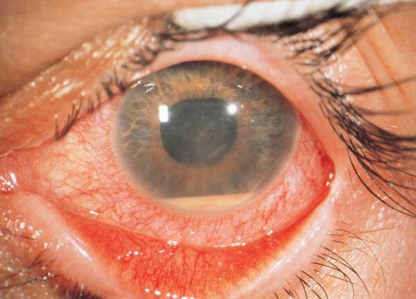 queratitis intersticial