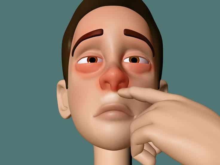 La alergia remedios nariz la caseros en para