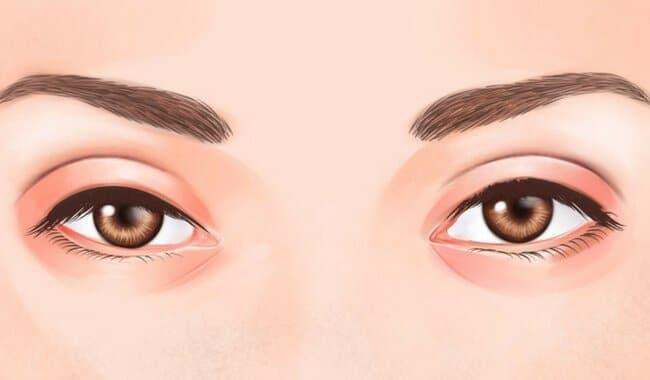 retinopatia-de-purtscher-1